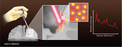 Guiding Brain Tumor Resection Using Surface-Enhanced Raman Scattering Nanoparticles