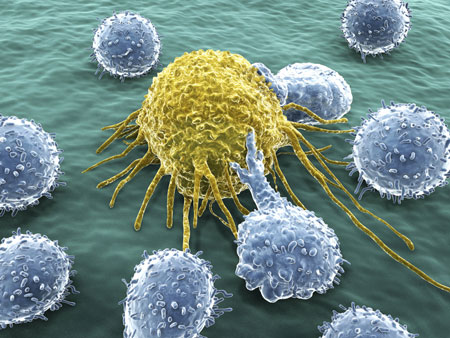 A cancer cell under attack by lymphocytes