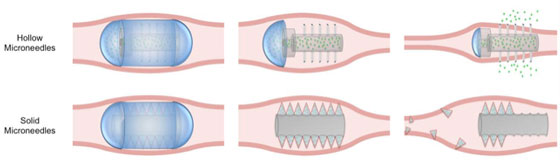 therapeutic-use illustration of the microneedle pill