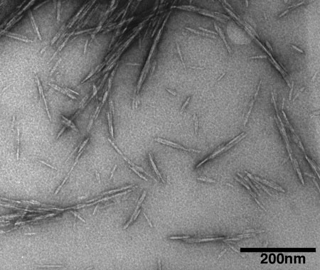 transmission electron microscope image showing cellulose nanocrystals