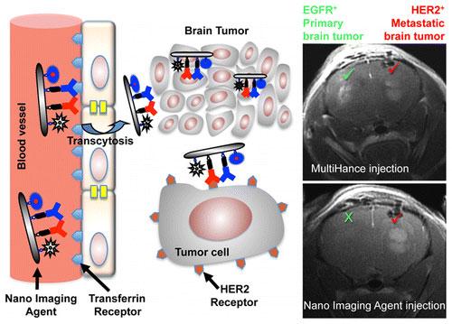 MRI Virtual Biopsy and Treatment of Brain Metastatic Tumors with Targeted Nanobioconjugates