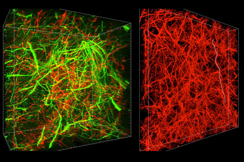 Imaging the brain at multiple size scales