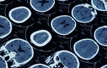 MRI can identify blood clots in the brain