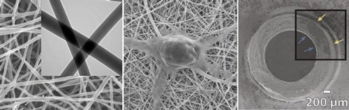 >The left panel shows a closeup of chitosan and polyester fibers woven at the nanometer scale. The middle panel shows a nerve cell growing on the resulting mesh, which has a texture similar to the body's fibrous connective tissue. The right panel shows a cross-section of the synthetic nerve guide. Arrows point to nerve cells that have attached to the inner and outer surfaces of the tube