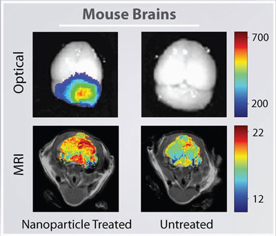 A mouse brain tumor imaged using nanoparticles (left column) or conventional techniques (right column) combined with optical imaging and MRI