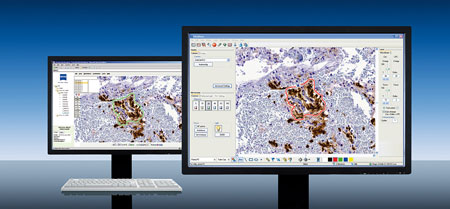 The new VisDat (Virtual Slide Date Transfer) module of the PALM RoboSoftware makes it possible for the first time to connect molecular and digital pathology