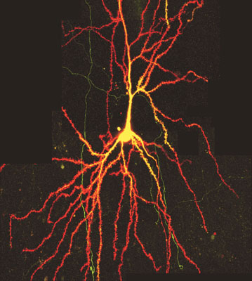 Two-photon-microscopy of neuron