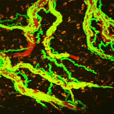 the movement of creeping T-cells (green) inside blood vessels (red)