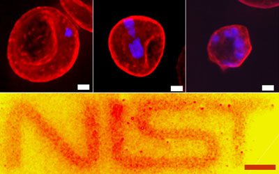 Human red blood cells, in which membrane proteins are targeted and labeled with quantum dots, reveal the clustering behavior of the proteins