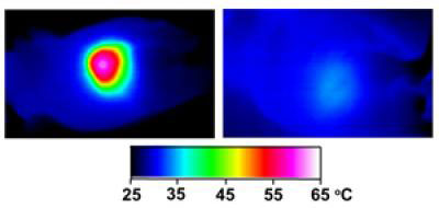 Infrared images made while tumors were irradiated with a laser show that in nanocage-injected mice (left), the surface of the tumor quickly became hot enough to kill cells. In buffer-injected mice (right), the temperature barely budged