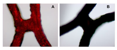 Two hours after local delivery of fluorescently labeled magnetic nanoparticles, the red areas indicate significantly larger amounts of nanoparticles in vascular stents in the presence of a magnetic field (A) compared to no magnetic field (B)