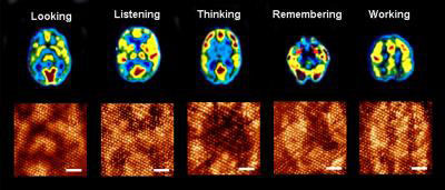 Magnetic resonance images of human brain during different functions