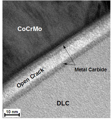 Under physiological conditions, stress corrosion cracking leads to a slow-growing crack in the metal carbide