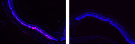 Image on left shows damage (pink) to the retina. Image on right show that POD GDNF nanoparticles protected the retina from damage.