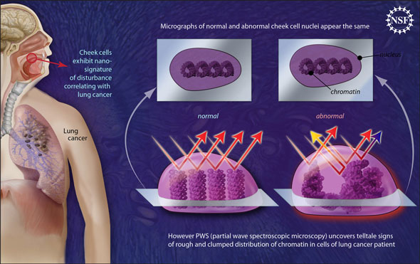 Nano-scale disturbances in cheek cells indicate the presence of lung cancer