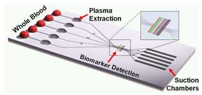 This schematic of the tether-free SIMBAS chip shows some of the functional elements, such as the blood loading area, the plasma separation microtrenches, detection sites and the suction flow structures.