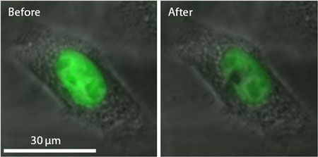 The nano-beam has been successfully used to selectively damage a nucleus (fluorescent green) in a cancer cell