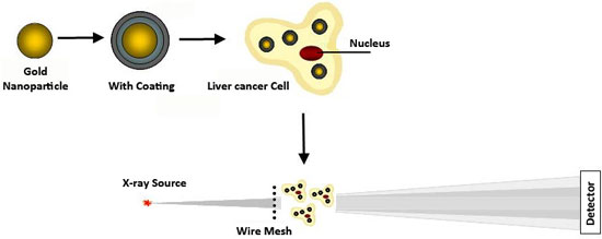 Gold nanoparticles with a polyelectrolyte coating can make smaller tumors more visible through X-ray scatter imaging