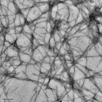 Amyloid fibrils like those magnified here 12,000 times are thought to be the cause of plaques in the brains of Alzheimer's disease patients