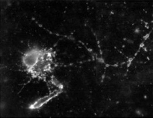 A neuron in primary neuronal cultures generated from a brain of a fruit fly is aglow with ORMOSIL
