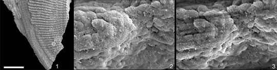 This SEM image of a tiny part of the Onychodus scale
