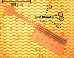 Nanobots the artificial blood