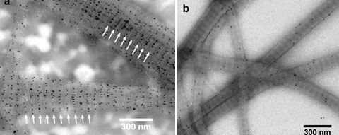 Transmission electron micrographs of reconstituted type I collagen fiber