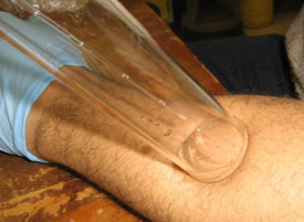 Sampling skin odour from a subject's forearm