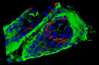 3D reconstruction of optical sections of mouse skin generated by structured illumination using the ZEISS ApoTome