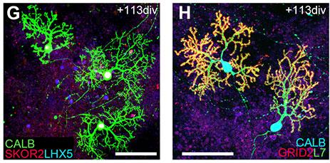 http://www.nanowerk.com/news2/biotech/id38890.jpg