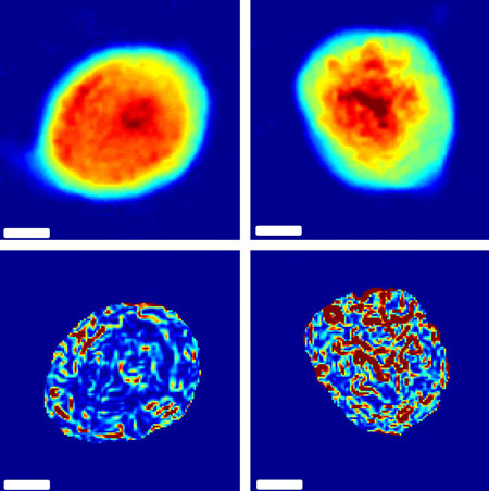 Images of cells are analyzed to calculate the level of disorder in their internal structures