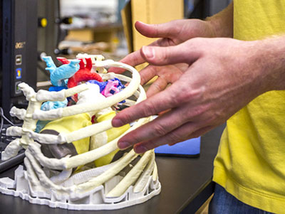3-D print of an optimized, patient-specific artificial heart
