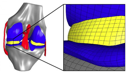 finite element model of the knee joint with representation of the cartilage, menisci and the associated bone structures