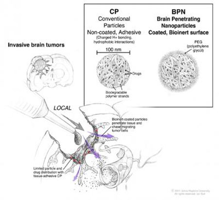 Sketch of Nanoparticle Application During Tumor Surgery