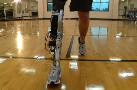 lower limb prosthetic