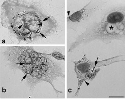 Morphology of H596 lung carcinoma cells exposed to TiO2-based nanofilaments