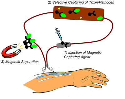 Schematic depiction of the process of pathogen removal from the blood using nanomagnets
