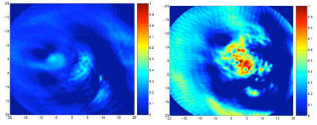 Photoacoustic images of mice tumor before and after intratumoral injection of polyhydroxy fullerenes