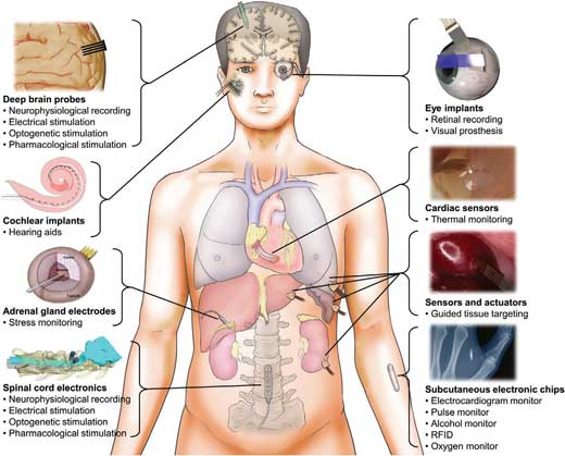 Diagram of the human anatomy and different classes of injectable biomedical devices for sensing and stimulating internal body organs