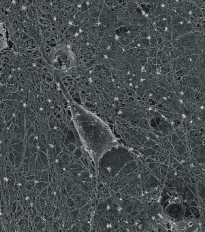 SEM micrograph of a cultured rat hippocampal neuron grown on a layer of purified carbon nanotubes